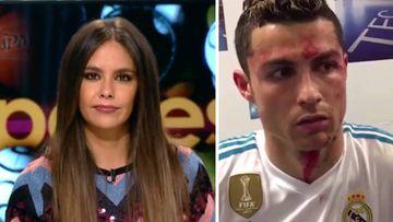 Imágenes de Cristina Pedroche en Zapeando y de Cristiano Ronaldo en el vestuario mientras le curan de la brecha que se hizo en el partido de Liga frente al Deportivo de la Coruña