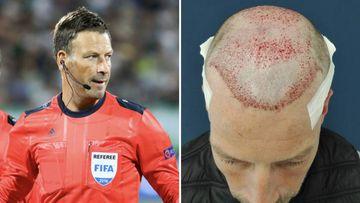 """Mark Clattenburg se somete a un trasplante de cabello: """"Me sentía frustrado"""""""
